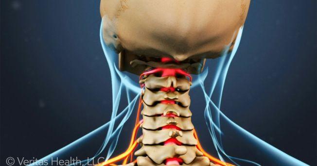 head-movements-cervical-radiculopathy